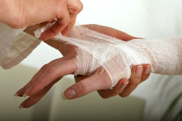Home Care Tips: Burn First Aid